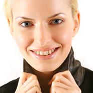kobieta aparat ortodontyczny
