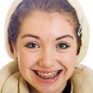 dziecko aparat ortodontyczny