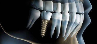 Implanty zebów